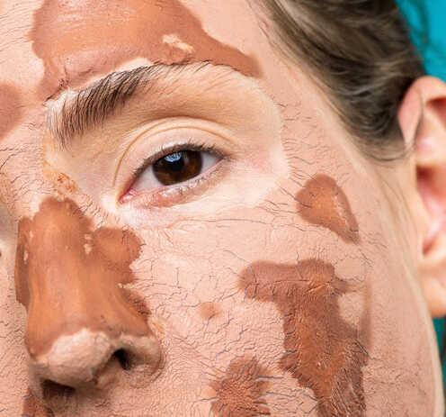 10 Cách dưỡng da mùa đông không bị khô và nứt nẻ