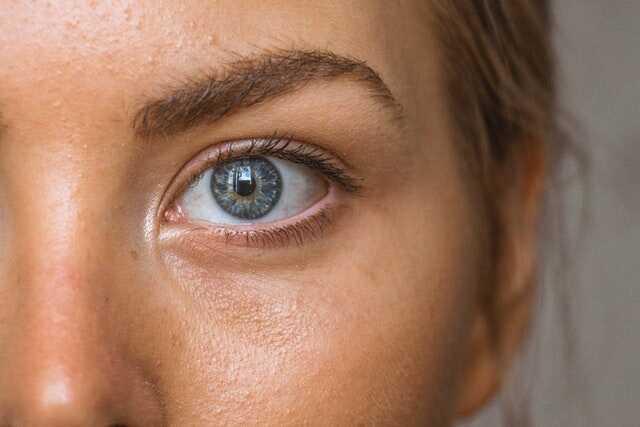 11 Cách khắc phục da nhờn cực kỳ hiệu quả